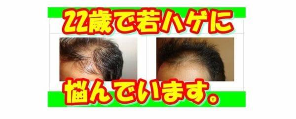 頭皮がかゆいと感じることが増えたならノコアヘアサポートスカルプエッセンス